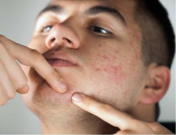 Posizione dei Brufoli sul viso:indicano lo stato di salute