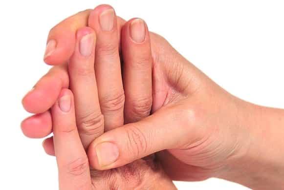 12 sintomi di malattie che si possono capire guardandoti le mani