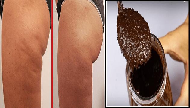 Pelle morbida e senza Cellulite. Usa questa mistura naturale