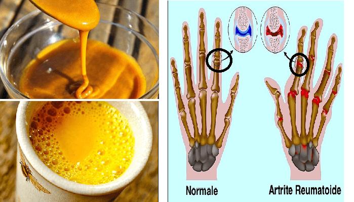 La mistura che combatte artrite reumatoide e dolori articolari