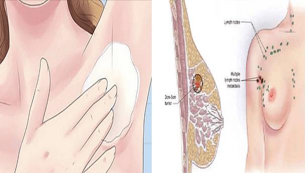 Previeni il Cancro al seno, applica questa miscela sulle ascelle