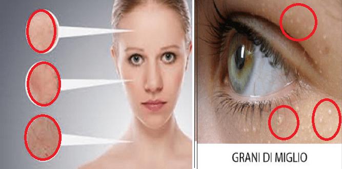 Grani di miglio sulla vostra pelle: cause e rimedi naturali