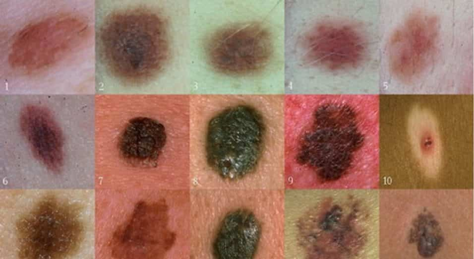 Neo sporgente, in rilievo, rialzato, ingrossato, ruvido, bicolore, a grappolo e spellato