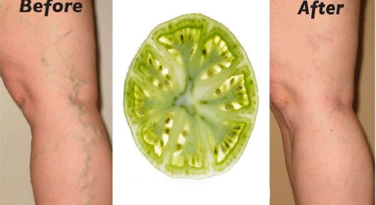 Pomodori verdi sulle vene varicose
