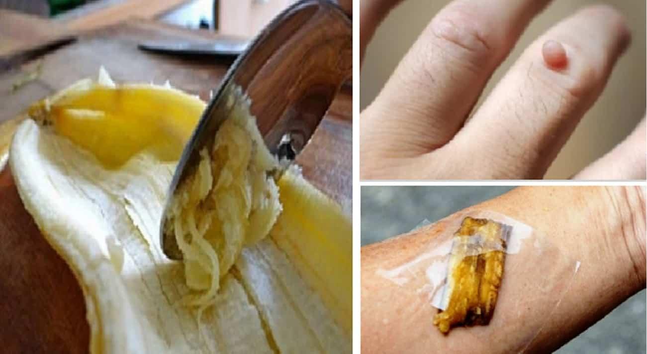 Buccia di banana per il viso e sulla pelle
