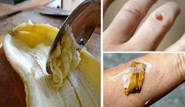 Mai gettare la buccia di banana. I suoi benefici sono strepitosi