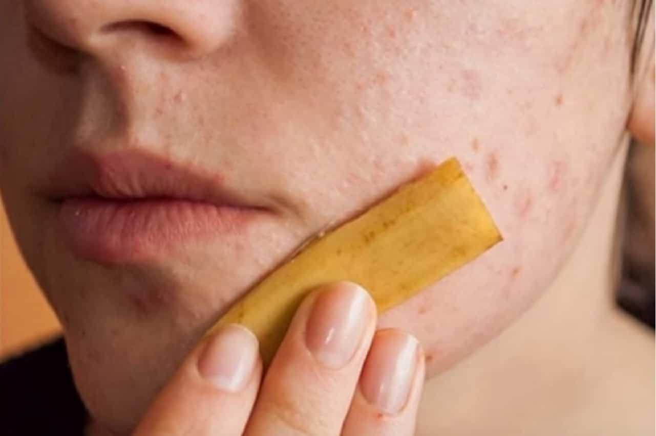Buccia di banana per acne e brufoli, un efficiente rimedio
