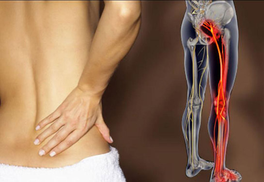 Come eseguire lo stretching del muscolo Piriforme per sbarazzarti di sciatica e dolore all'Anca. VIDEO