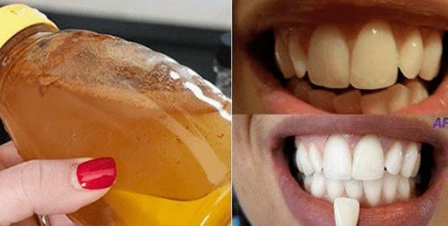 Sbiancare i denti con l' aceto di mele. Ecco come farlo
