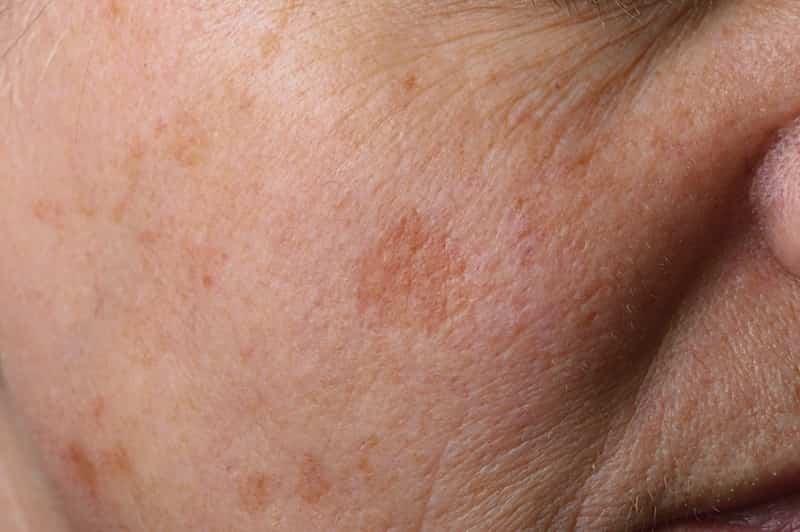 vitamina E macchie della pelle