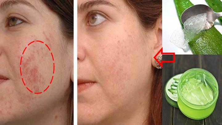 Rughe,macchie e smagliature sulla pelle non saranno più un problema con questo rimedio