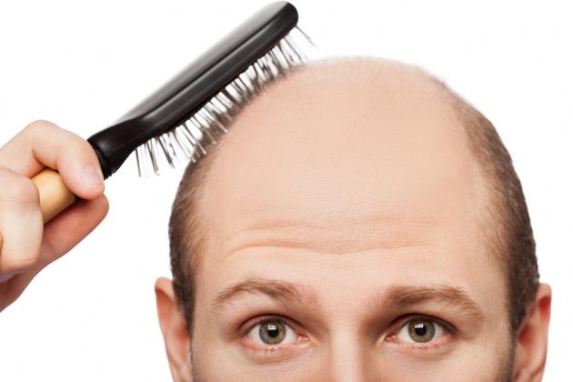 la perdita di capelli non è sempre dovuta ad un fattore genetico ecco le cause