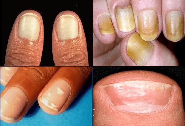 Ecco perchè le unghie ci dicono molto sul nostro stato di salute