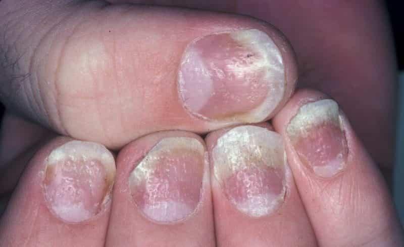 psoriasi sulle unghie