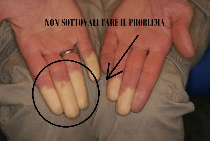 Mani e piedi freddi che cambiano colore? E' la sindrome di Raynaud