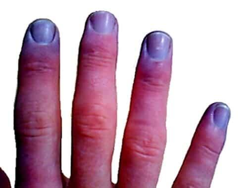 unghie blu cianosi