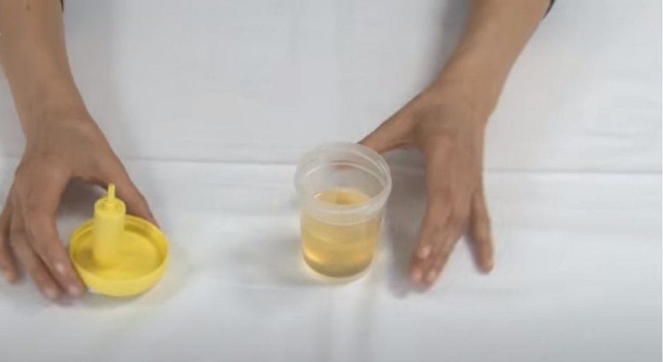 pipì che puzza urina maleodorante
