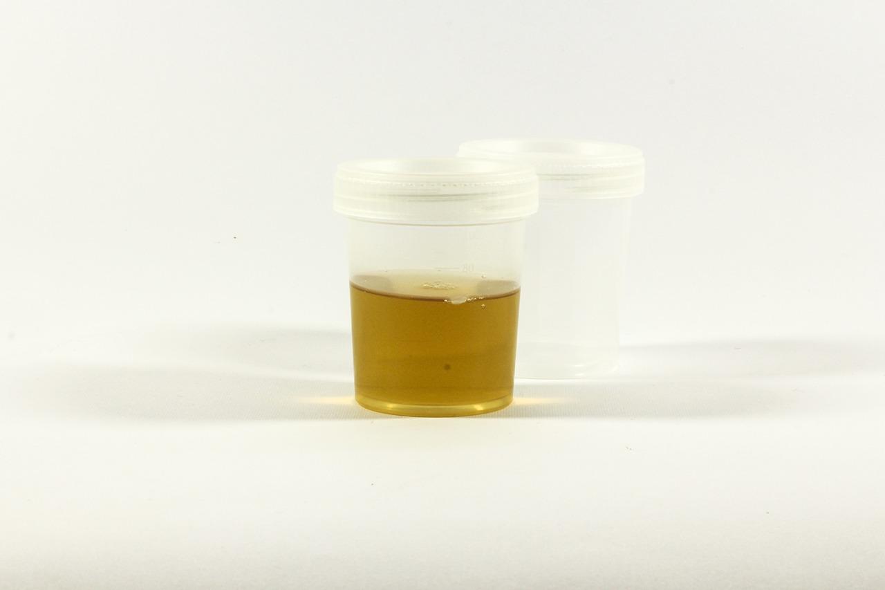 urina maleodorante, le cause della pipì che puzza