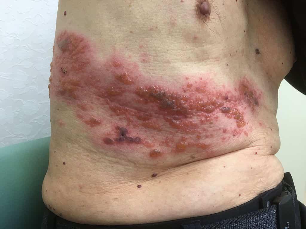 Fate molta attenzione al Fuoco di Sant'Antonio: pazienti colpiti, cause,sintomi e rimedi