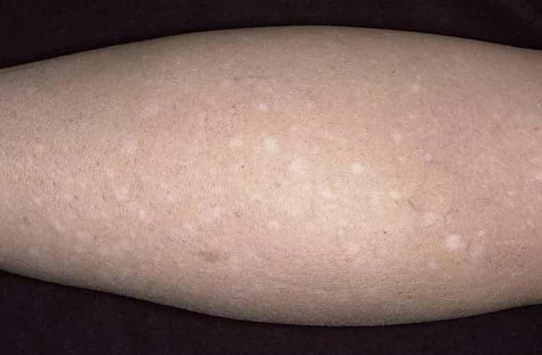Macchiette bianche sulle gambe dopo l'abbronzatura? Ecco perchè accade e i rimedi per contrastarle