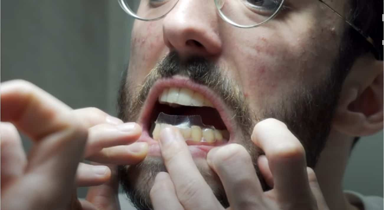 Kit sbianca denti in farmacia - strisce sbiancanti