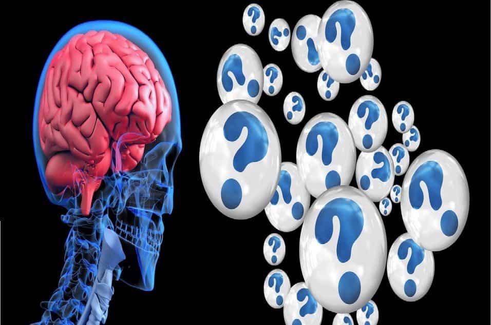 Cervello e Alzheimer
