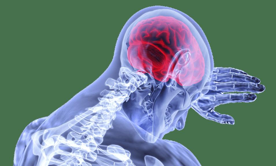 Ictus al cervello