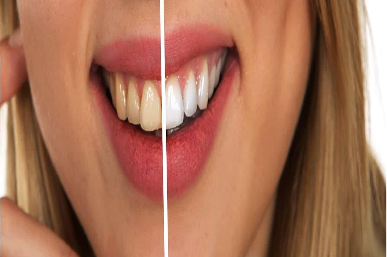 I 6 migliori rimedi per sbiancare i denti in modo naturale